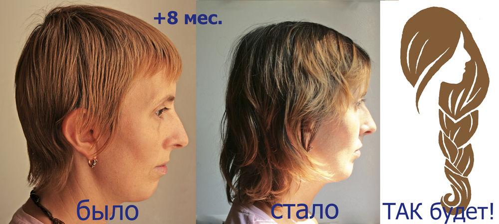 Вырастить косу в 40 лет! Месяц десятый..., фото № 5