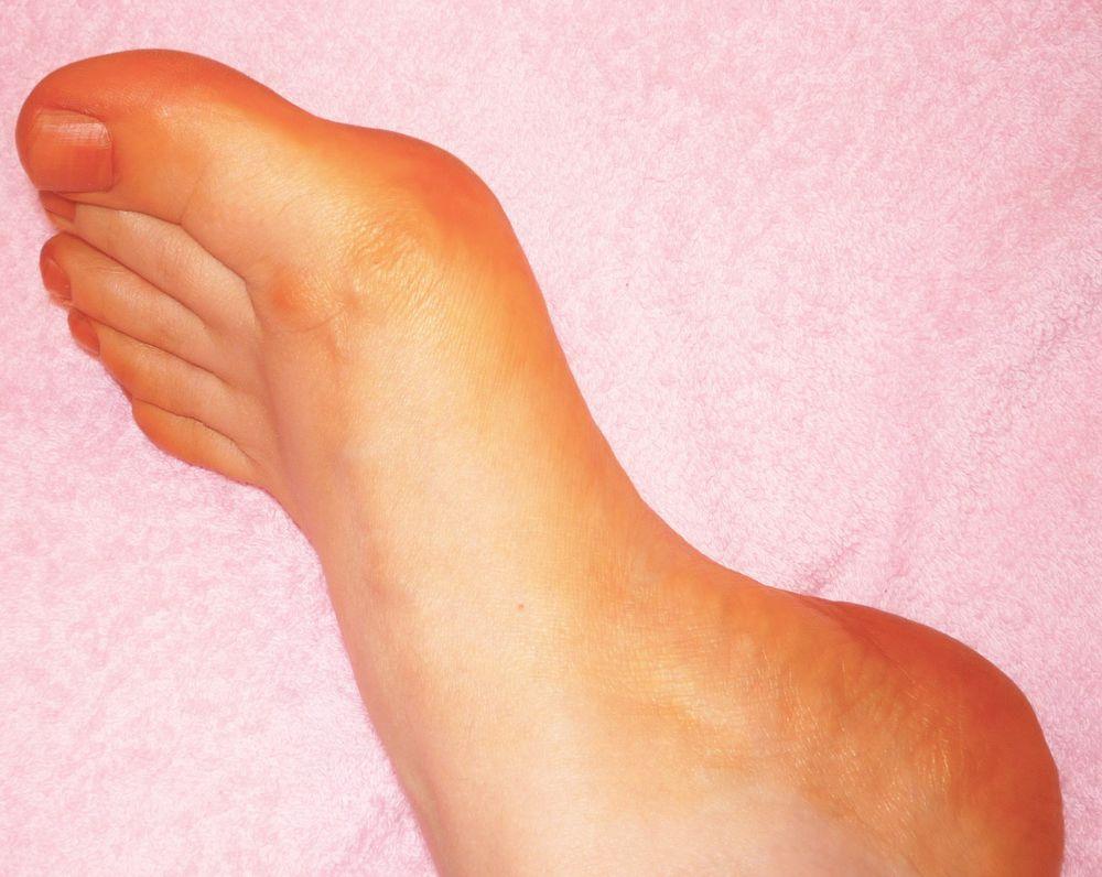 лечение грибка, розовые пяточки, окрашивание ногтей хной