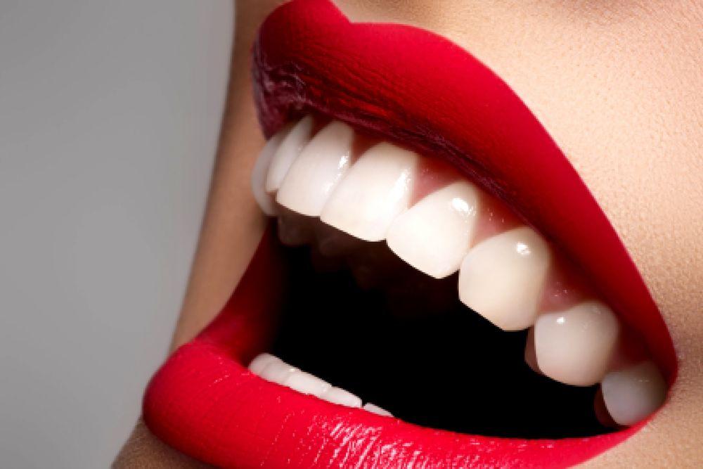 отбеливание, отбеливание зубов, красивая улыбка, зубная паста, девушкам, домашняя косметика, советы, косметика, своими руками, здоровье, для всех, косметология