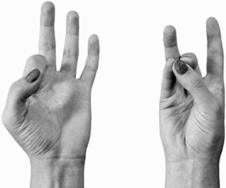 Советы врача по лечению шейного остеохондроза